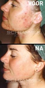 acne voor na 2
